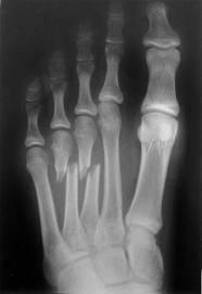 Inflamația articulațiilor metatarsiene ale piciorului