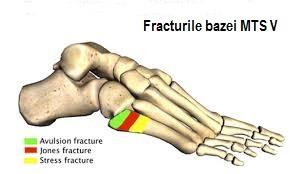 Durere în articulațiile metatarsiene ale picioarelor. METATARSALGIA - CAUZE, SIMPTOME, TRATAMENT