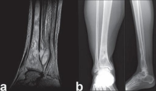 tratamentul osteomielitei genunchiului)