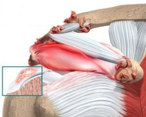 shoulder_calcific_anatomy02a