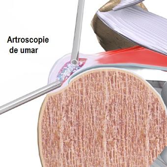 calcifierea umărului cum să tratezi durere radiculară în articulația șoldului