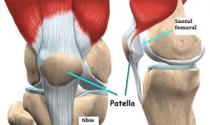 artroza articulației patello-femurale)