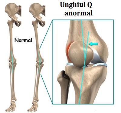 umflarea articulației genunchiului și nu se îndoaie)