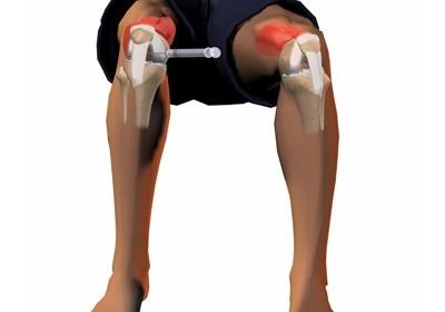 Rezultatele infiltratiilor cu PRP in artroza
