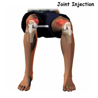 implanturi pe articulația genunchiului
