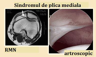 medial-plica-syndrome-1