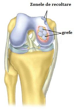 unguent pentru repararea țesutului cartilajului articular schema de tratament pentru artroza genunchiului 2 grade