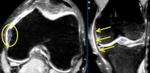 Dureri de spate scazute in timpul sarcinii la 28 de saptamani de sarcina