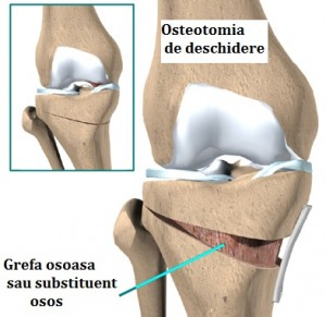 knee_tibosteo_surgery02