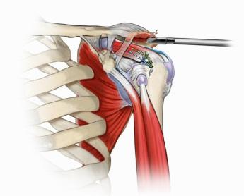refacerea articulației umărului după fracturarea unui tubercul mare)