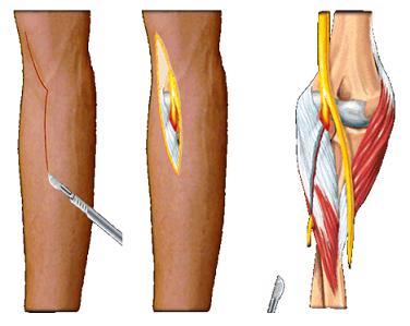 este posibil să se crească articulațiile cu artroza