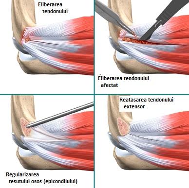 Epicondilita laterală a articulației cotului - simptome și tratament