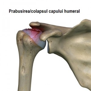 humeral_head_osteonecrosis_collapse