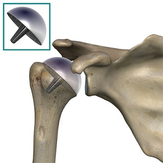 humeral_head_osteonecrosis_resurfacing