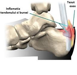 partea din spate a gambei dureroasă la atingere