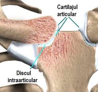 cu osteochondroza unguentului toracic