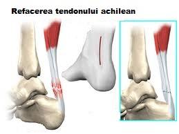 reumatismul tratamentului simptomelor genunchiului