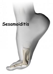 foot_sesamoiditis_intro01