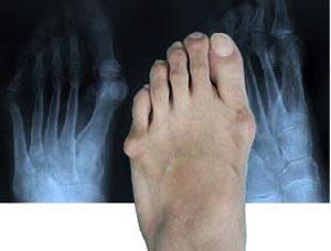 ce cauzează dureri severe de vițel la mers picioare umflate atingere sensibilă