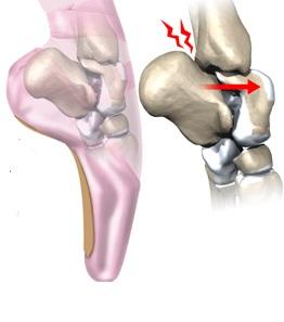tratamentul durerii articulare a gleznei artrita posttraumatică a simptomelor și tratamentului genunchiului