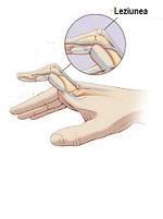 problema articulației degetelor ruperea ligamentului lateral al tratamentului articulației genunchiului