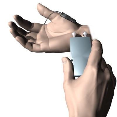 hand_guyon_canal_diagnosis01