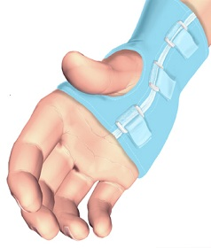 hand_guyon_canal_treatment01