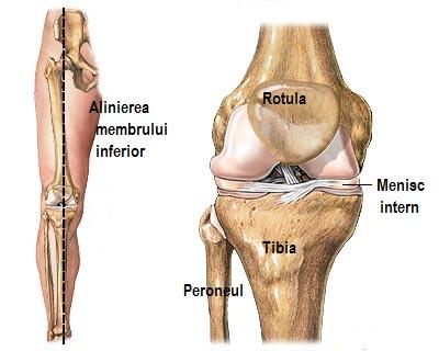 articulațiile genunchiului rănite periodic