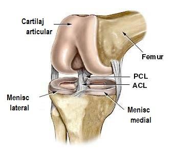 deplasarea articulației genunchiului)
