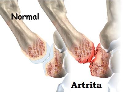 artrita degetului mare si tratament amelioreaza artroza durerilor de genunchi
