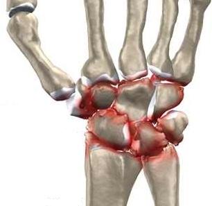 wrist_osteoarthritis_intro01