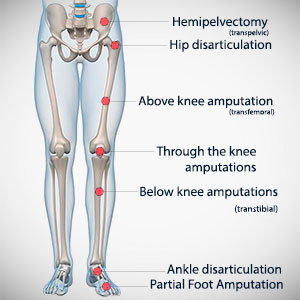 leg-amputation-types
