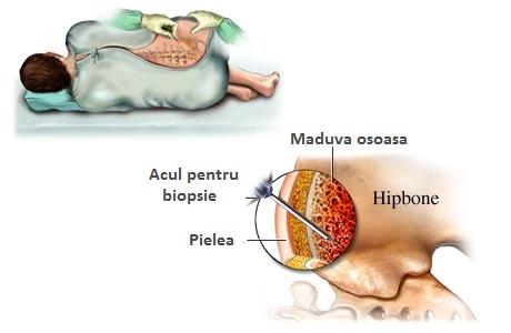 metode de tratare a artrozei deformante articulare