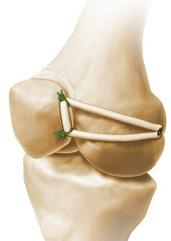 Reconstructia ligamentului femuro-patelar intern (MPFL)