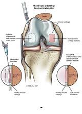 Rezultatele tratamentului leziunilor de cartilaj articular