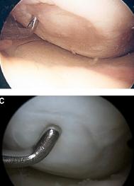Procedura biologica de refacere intr-un singur timp – prin microfracturi, concentrat autolog de maduva osoasa si tapetarea cu membrane de colagen – a defectelor osteocondrale