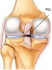 Ruptura ligamentului incrucisat posterior