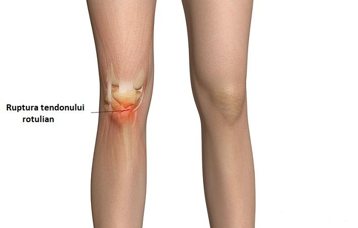 ruperea tendoanelor articulației genunchiului cum să se trateze)
